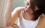 Найден фактор влияния на псориаз