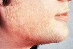 Гипертрихоз — причины, симптомы и лечение гипертрихоза
