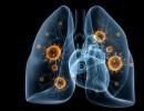 Вирусная пневмония — причины, симптомы, диагностика и лечение