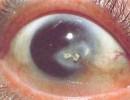 Бельмо на глазу: его причины, виды и лечение