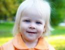 Албинизм — лечение альбинизма.
