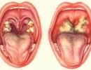 Острый фарингит — симптомы и лечение острого фарингита