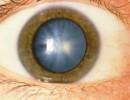 Катаракта — одно из самых распространенных глазных заболеваний