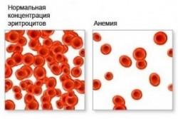 Анемия крови, что приводит анемию крови?