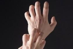 Аллергия на руках, причины, лечение